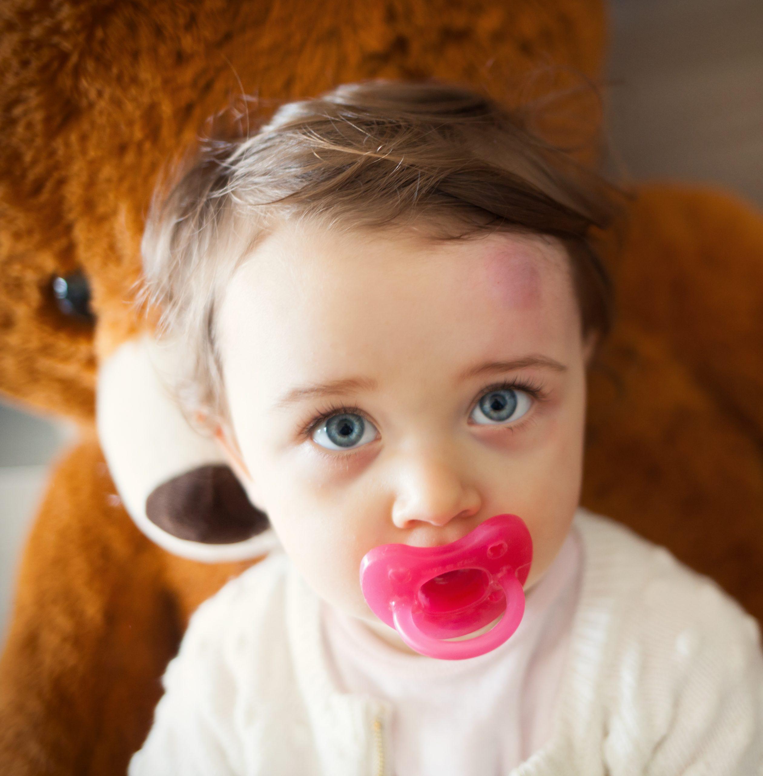 Traumatismo craneal infafntil: secuelas cognitivas gijon